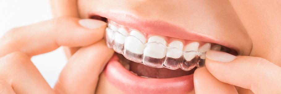 Выравнивание зубов 15241388072709-1-1