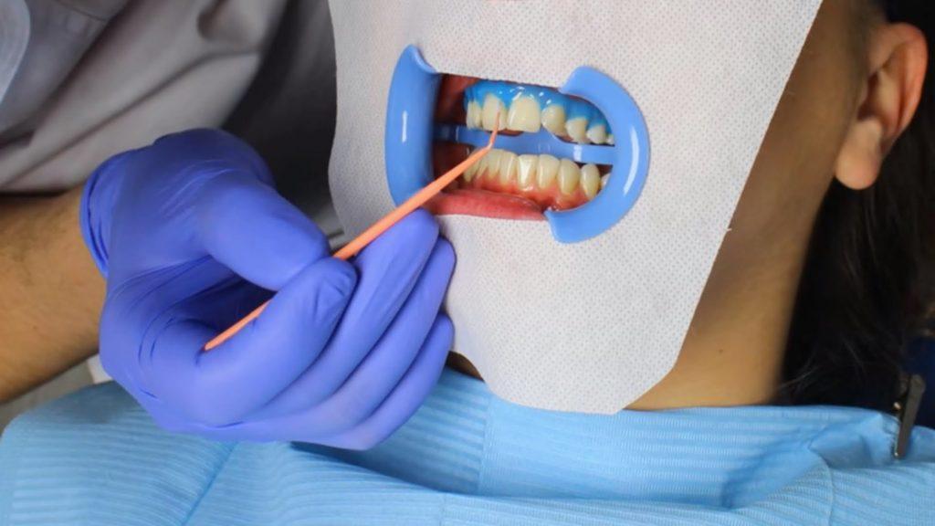 Отбеливание зубов - ФОТО