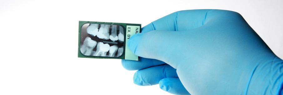 Диагностика зубов и рентген diagnostika-na-baner-1