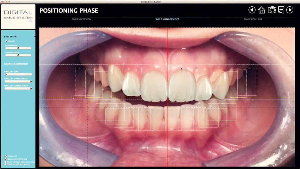 Компьютерное моделирование улыбки 2