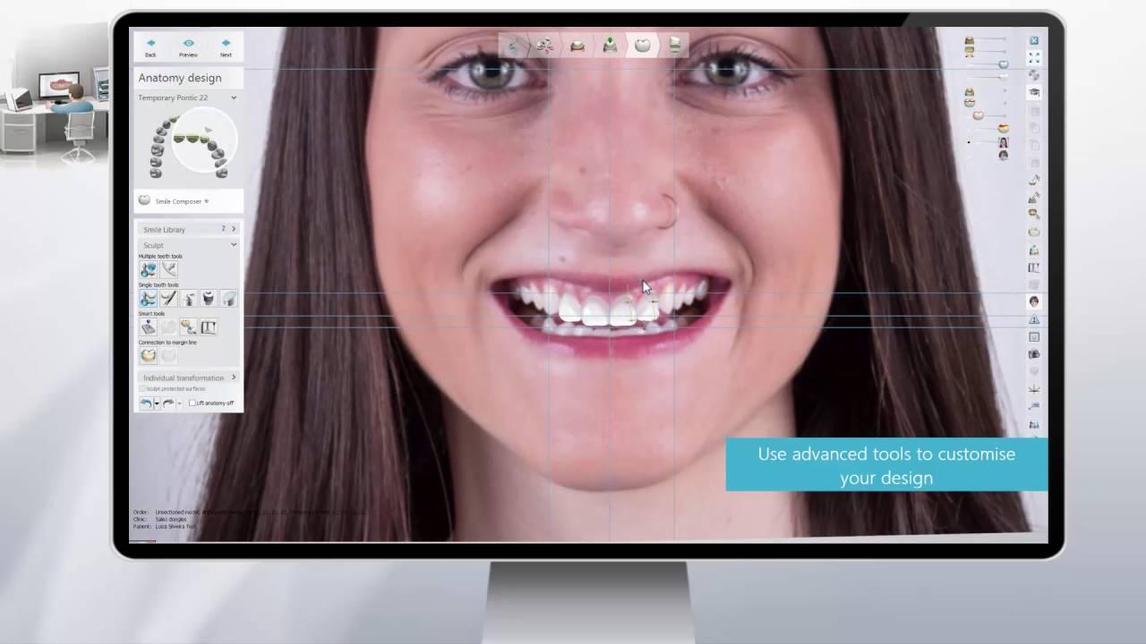 Компьютерное моделирование улыбки 0