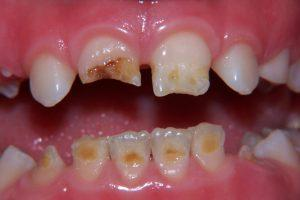Фото 5 - Художественная реставрация зубов в Esthetic Dental Clinicф