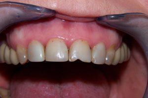 Фото 1 - Художественная реставрация зубов в Esthetic Dental Clinicф