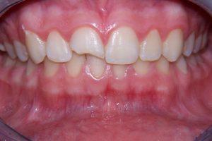 Фото 3 - Художественная реставрация зубов в Esthetic Dental Clinicф
