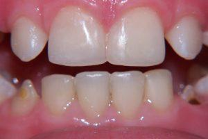 Фото 6 - Художественная реставрация зубов в Esthetic Dental Clinicф