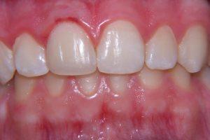 Фото 4 - Художественная реставрация зубов в Esthetic Dental Clinicф