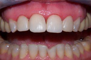Фото 2 - Художественная реставрация зубов в Esthetic Dental Clinicф